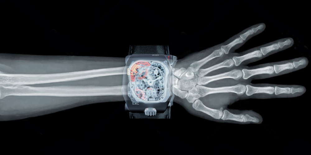 Urwerk X-rays your arm.